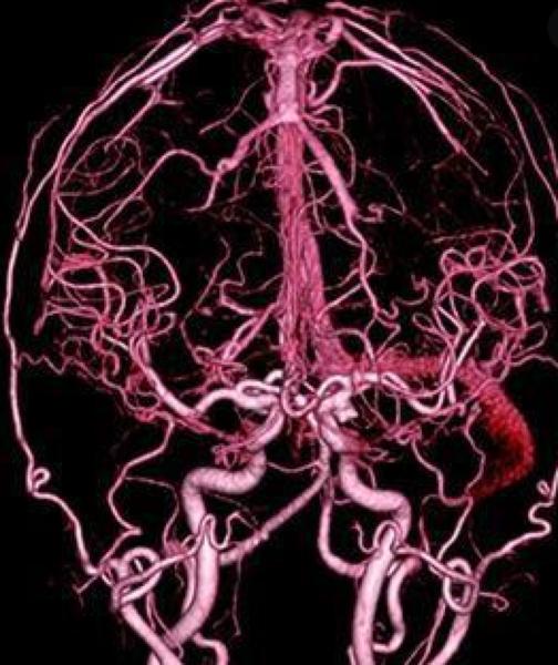КТ-ангиография сосудов головы
