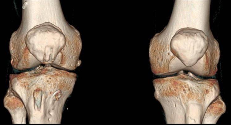 КТ коленных суставов - фотография