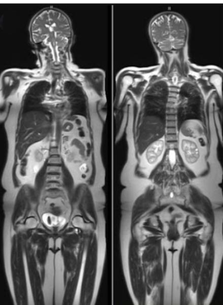 МР-изображение тела человека