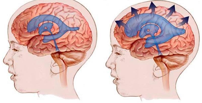 желудочки мозга в норме и при внутренней гидроцефалии
