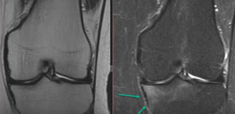 Контузия трабекулярной костной ткани на МРТ