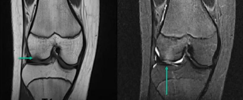 Субхондральный перелом латерального мыщелка на МРТ