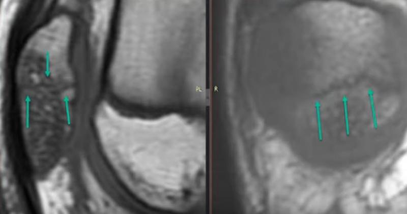 Перелом надколенника на МРТ