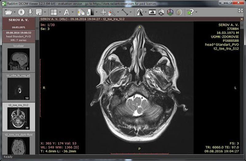Программа чтения результатов МРТ