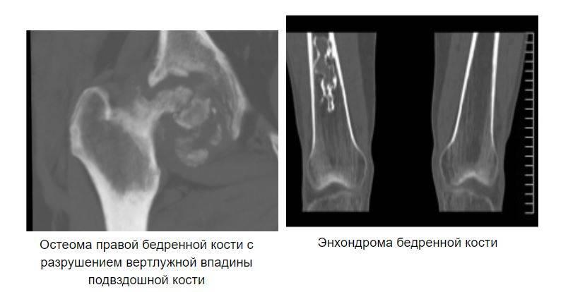 Остеома правой бедренной кости