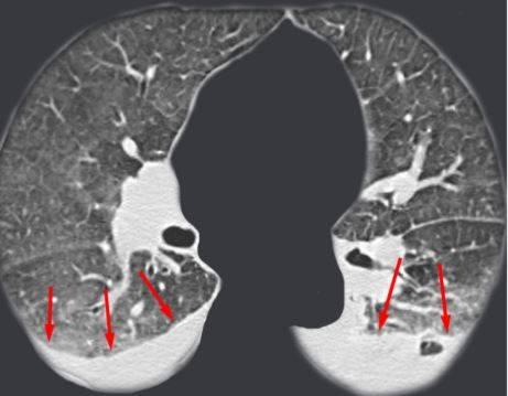 КТ грудной клетки фото