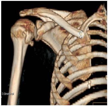 КТ плеча в 3D-реконструкции