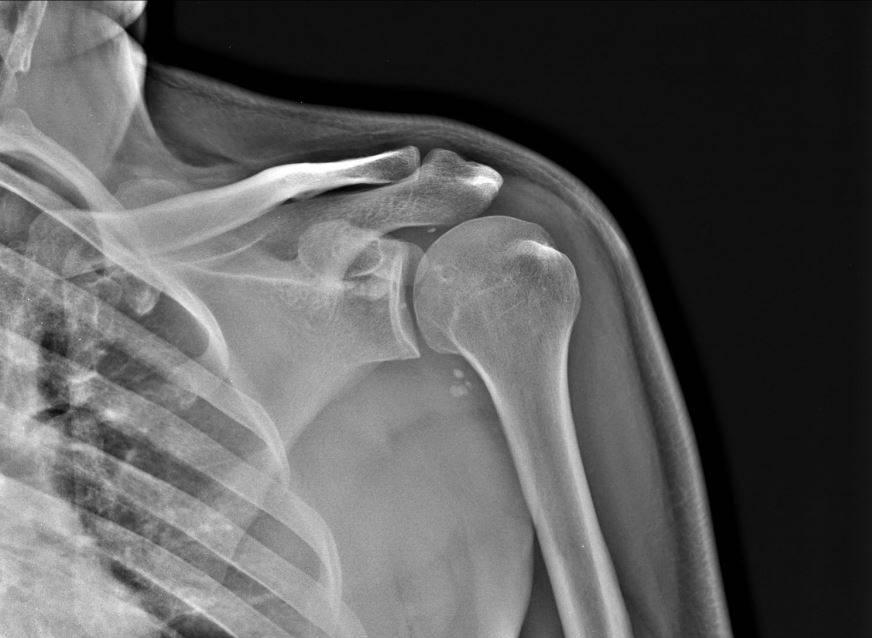 КТ плечевого сустава не причиняет боли или дискомфорта, требуется лишь лежать неподвижно во время сканирования