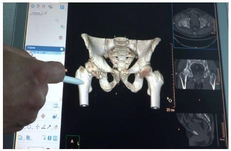 Расшифровка КТ костей таза: специальные программы расширяют возможности диагностики