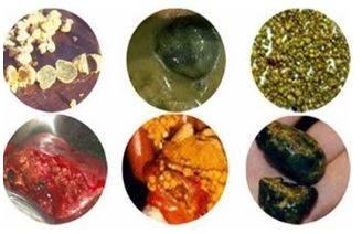 Конкременты в желчном пузыре вариативны по составу, размерам, количеству и форме