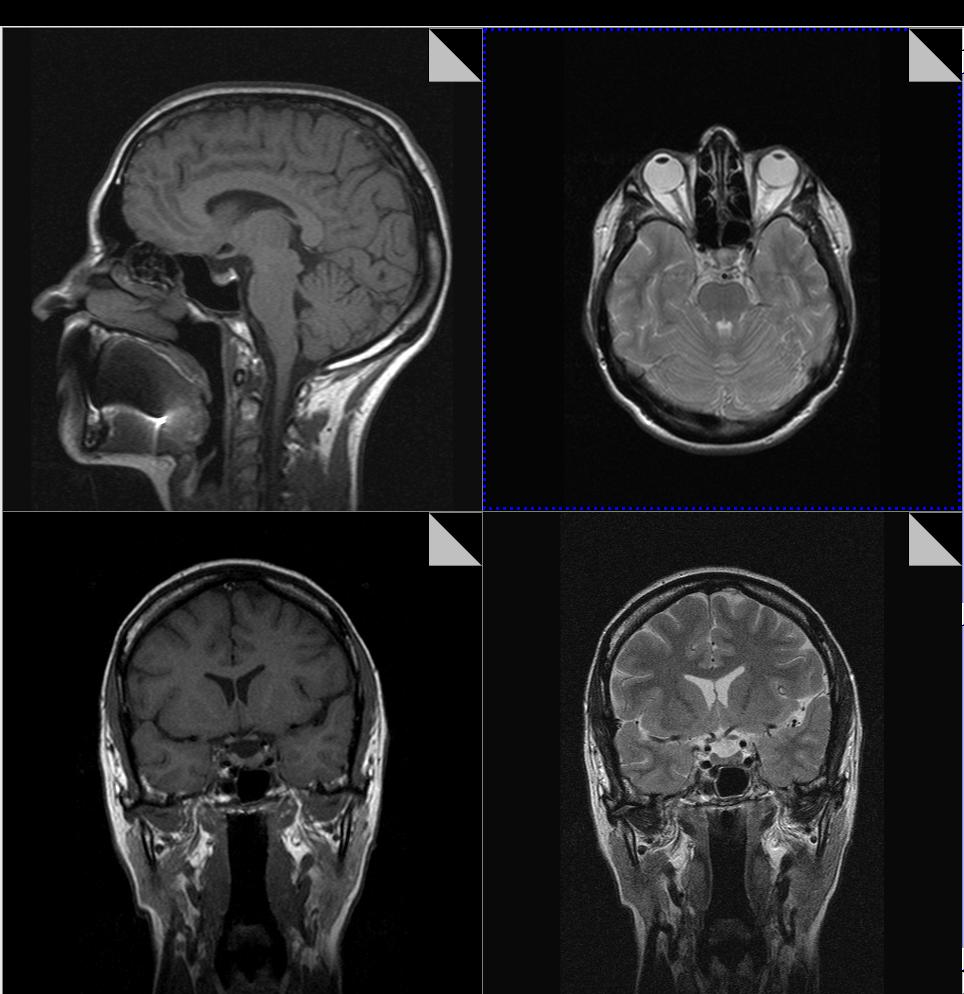 Выявление микроаденомы гипофиза с помощью МРТ: изображения в разных проекциях