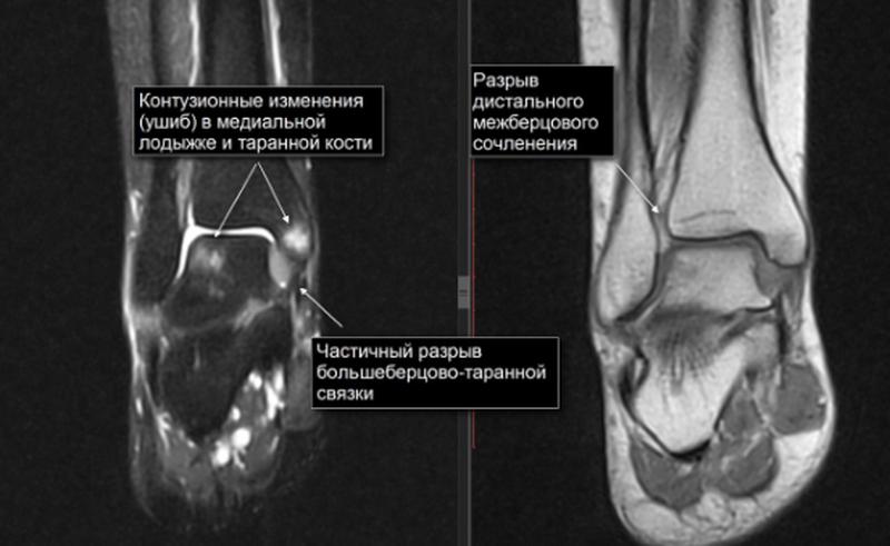 МРТ голеностопа при травме