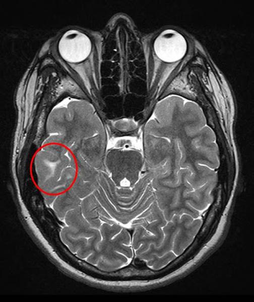 Туберозный склероз на МРТ головного мозга
