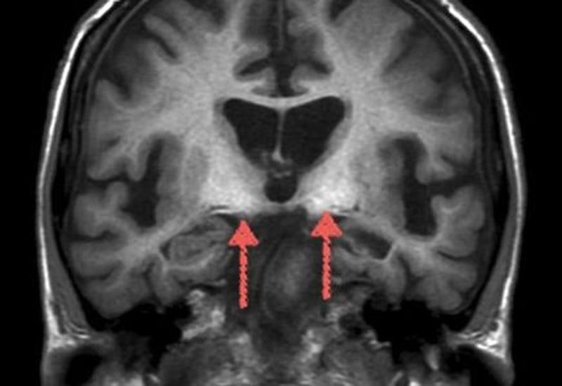 Склероз гиппокампа на МРТ головного мозга
