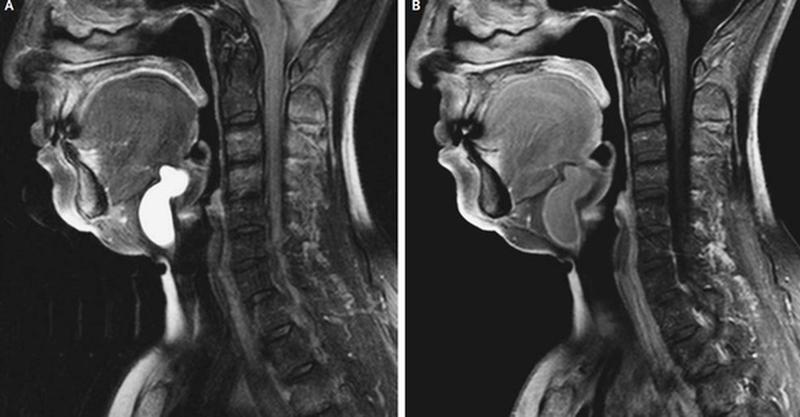 Киста шеи на МРТ