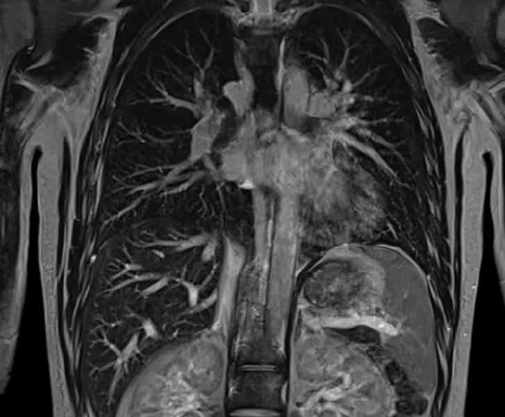 МРТ органов грудной клетки