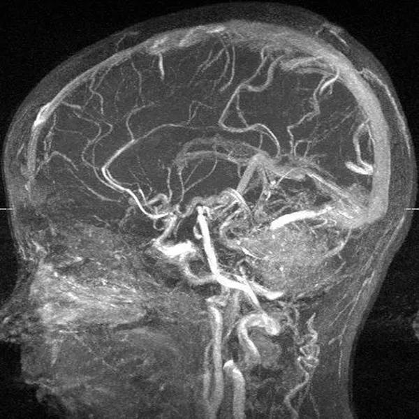 МР-ангиография головного мозга
