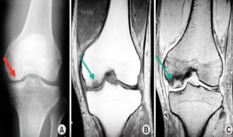 Субхондральный перелом на рентгенографии