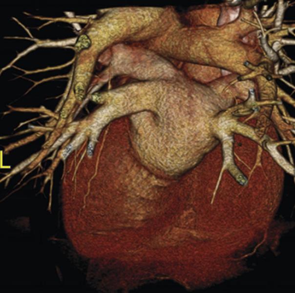 МРТ сердца в 3D
