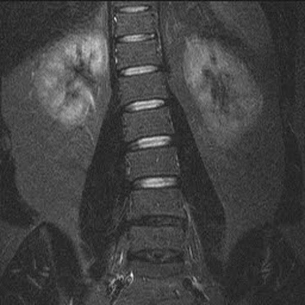 Сколиоз на МРТ