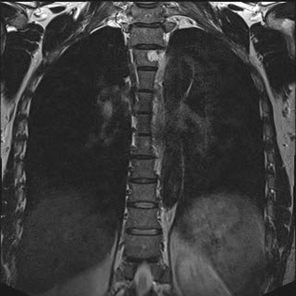 Гемангиома на МРТ