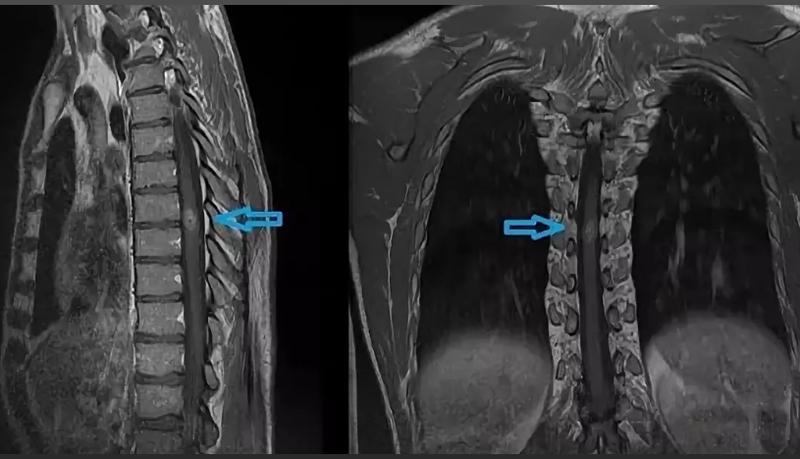 Опухоль спинного мозга в грудном отделе на МРТ