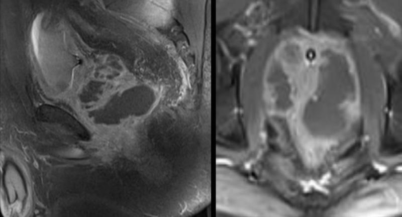 МРТ простаты показывает абсцесс