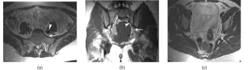 МРТ крестцово-подвздошных сочленений в норме
