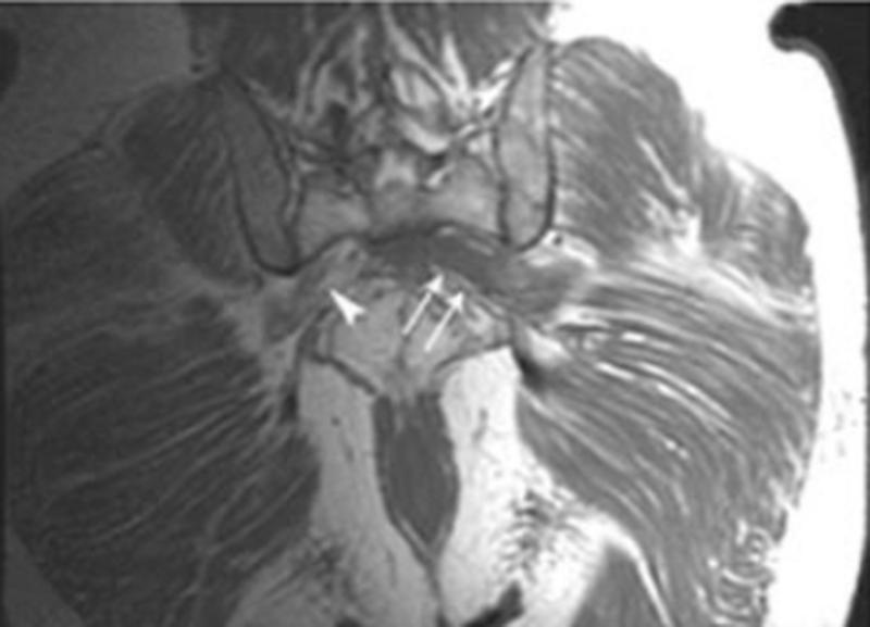 МРТ: пресакральный абсцесс с вовлечением левого пояснично-крестцового сплетения
