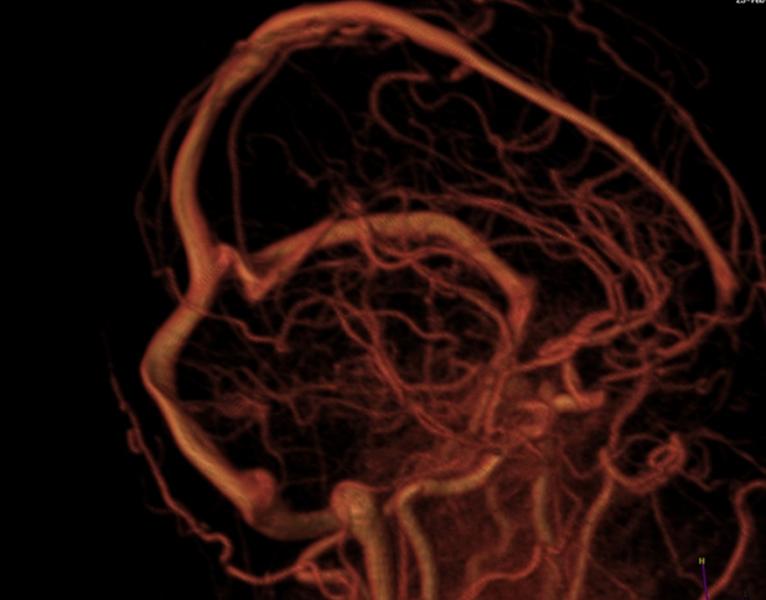 МРТ сосудов головы в 3D
