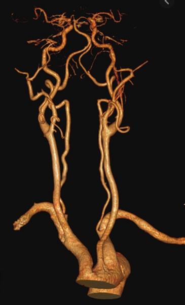 КТ сосудов шеи и головного мозга в 3D