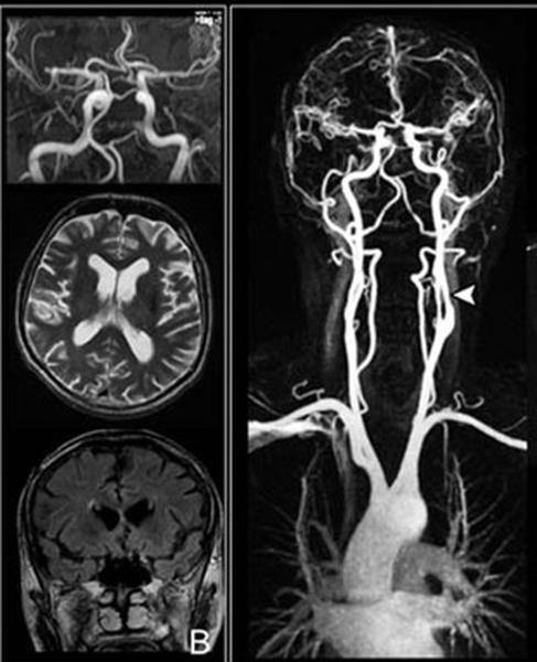 МРТ сосудов головы и вещества головного мозга
