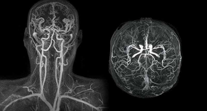 МР-ангиография сосудов головы и шеи