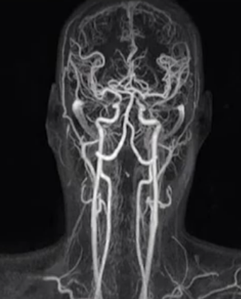 МР-ангиография артерий головы и шеи