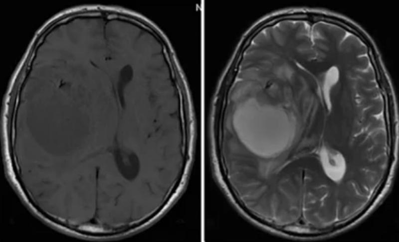 Объемное образование головного мозга на МРТ
