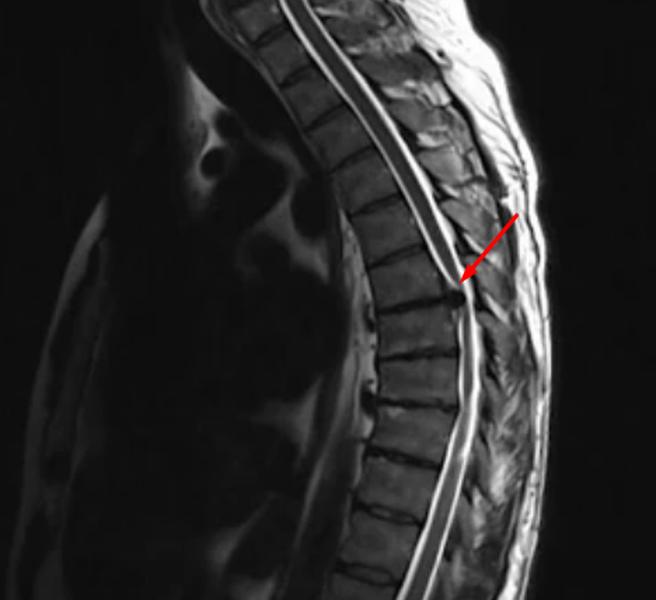 Экструзия межпозвонкового диска в поясничном отделе позвоночника на МРТ