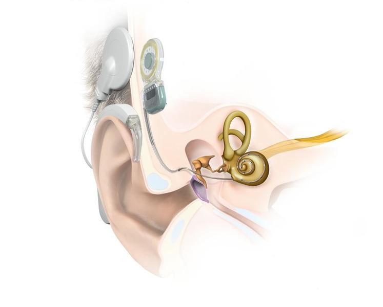 Кохлеарный имплантат