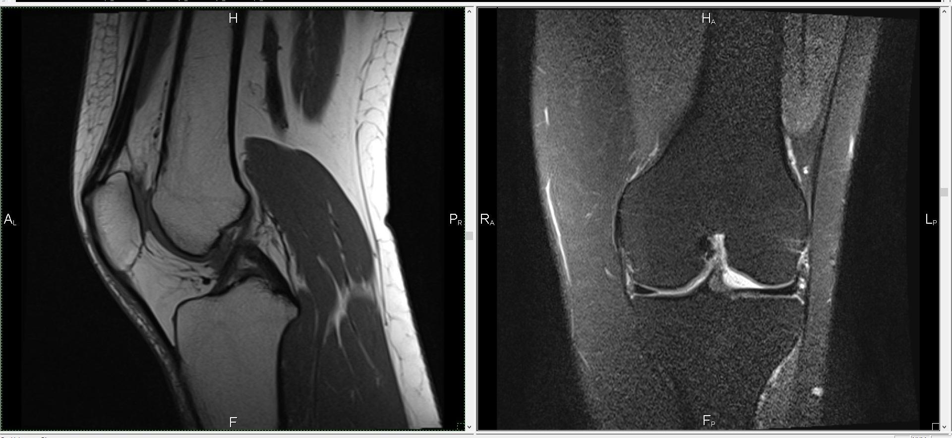 Мрт плечевого сустава цена спб дефартроз межфаланговых суставов стопы 1 степени
