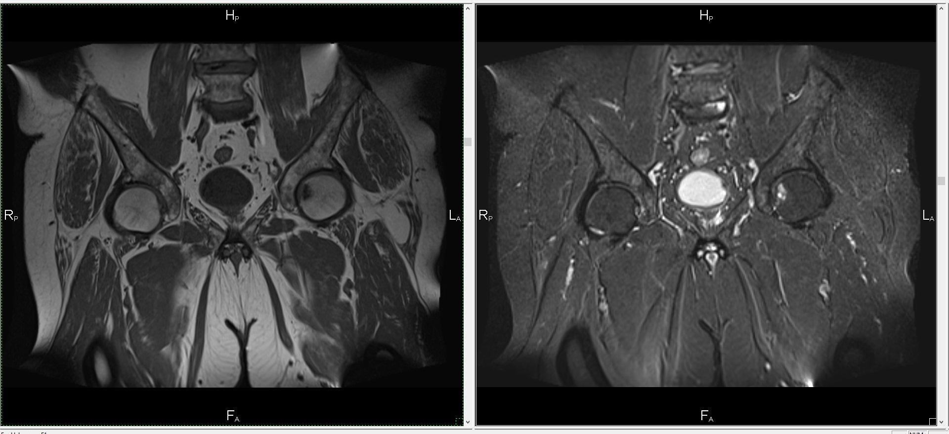 Магнитно резонансная томография коленного сустава цена мази от боли суставов ног