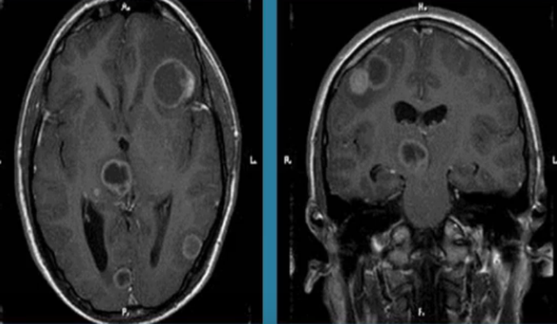 Токсоплазмоз на МРТ головного мозга