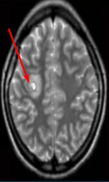 Абсцесс головного мозга на МРТ