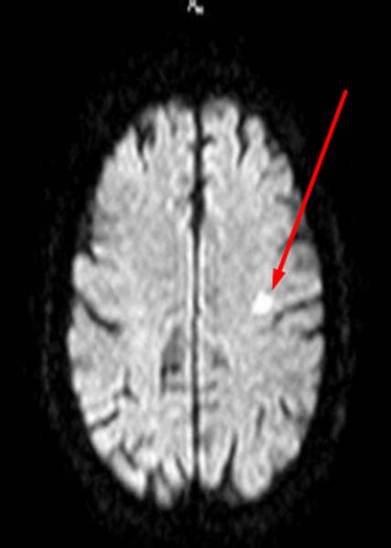 Лакунарный инфаркт головного мозга на МРТ