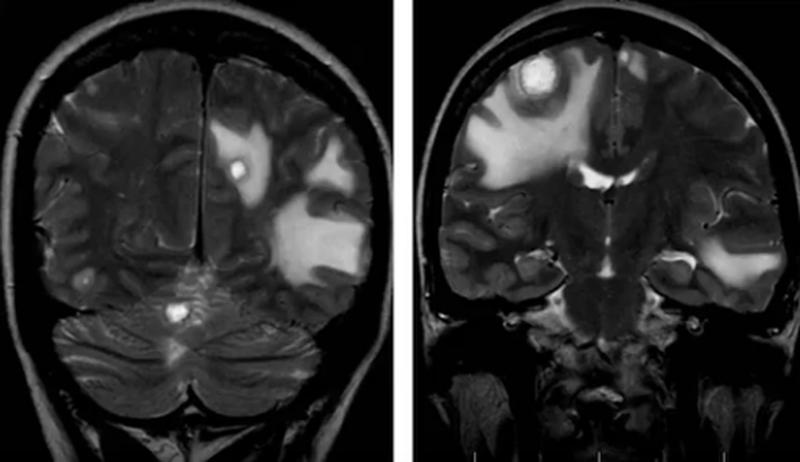 Множественные метастазы в головном мозге