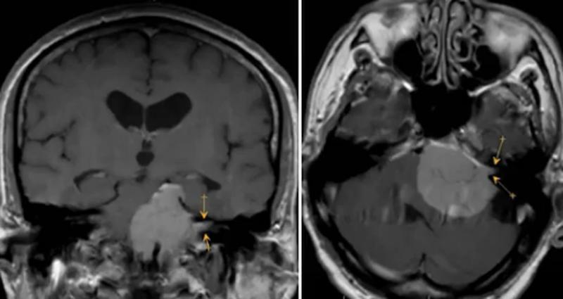 МР-изображение невриномы