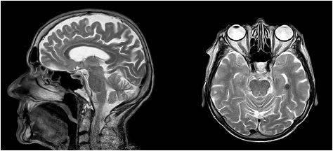 Магнитно-резонансная томография позволяет выявить патологию на ранней стадии, что считается приоритетным в онкологии и неврологии
