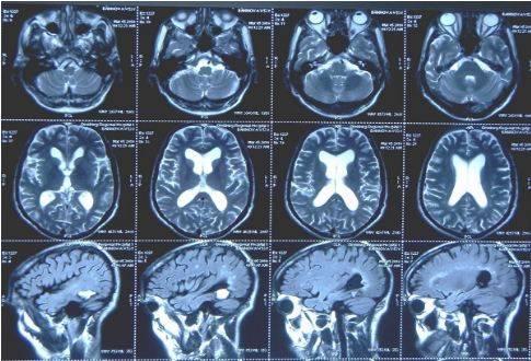 При МР-сканировании с помощью специальной программы из срезов можно получить объемные изображения или оценивать каждую томограмму в отдельности