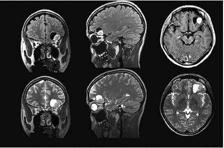 МРТ: глиальная опухоль левой лобной доли головного мозга с кистозным компонентом