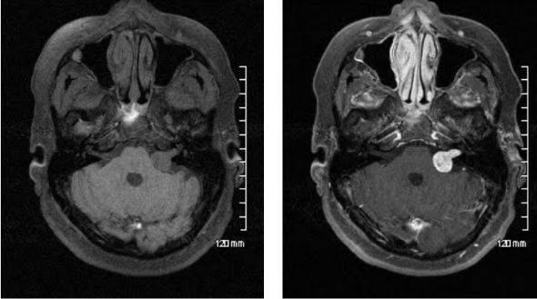 МРТ головного мозга нативная и с усилением: шваннома левого внутреннего слухового нерва становится ярче после введения гадолиния