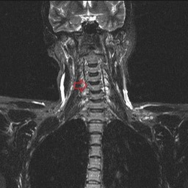 МРТ шейного отдела позвоночника