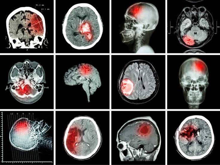 КТ головного мозга (опухоль)